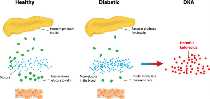 What Is Diabetic Ketoacidosis?